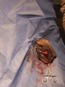 Tumor Removed